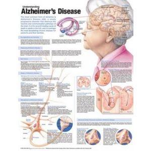 Understanding Alzheimer's Disease Anatomical Chart Laminated